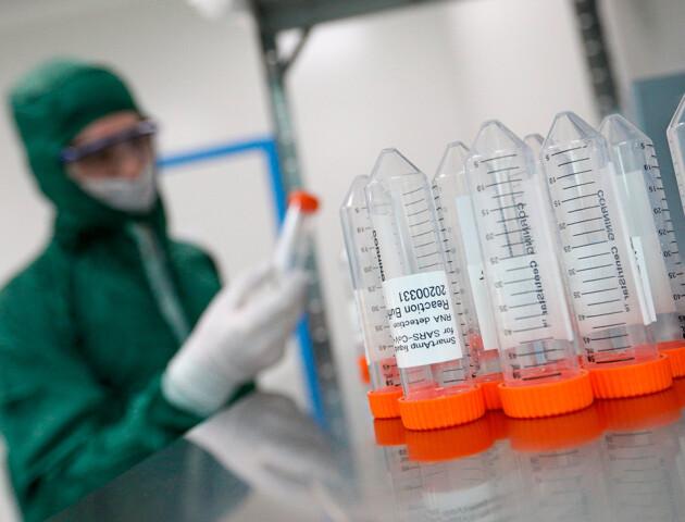 В Україні за добу понад 1100 нових хворих. На Волині — 45