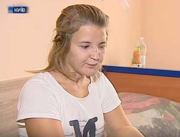 1,5 року рятують обличчя. Волинянці Іванці Гаджало зробили складну операцію