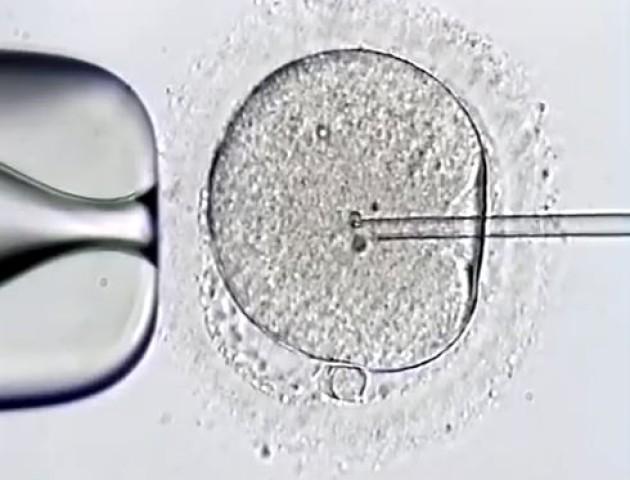 У медичному центрі «Боголюби» показали, як народжується нове життя. Приголомшливе відео