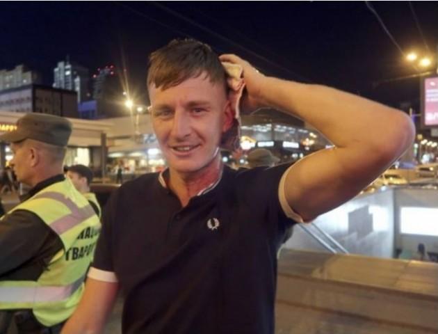 У Києві напали на фанів «Ліверпуля». ВІДЕО
