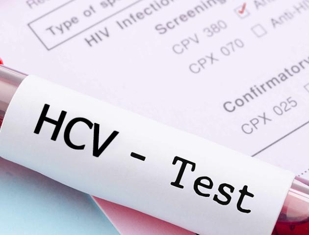 У Луцьку під час безплатного обстеження в 4 людей виявили гепатит С