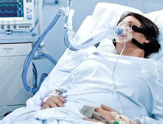 Анестезіологи у зверненні до Зеленського розкритикували українські «апарати ШВЛ»