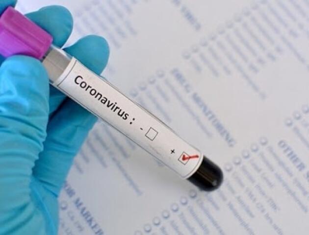 В Україні розпочались клінічні дослідження вітчизняного препарату проти COVID-19