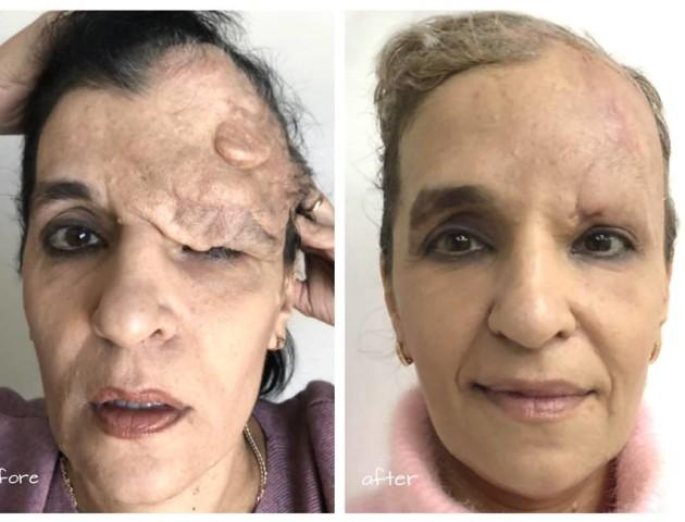 Відомий хірург з Волині показав, як врятував жінці обличчя. ФОТО