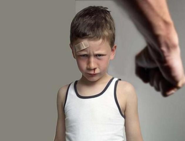 На Великдень батьки так побили своїх дітей, що були змушені викликати швидку
