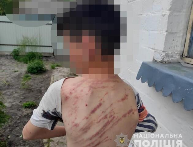 Вдарив гілкою 20 разів: у Володимирі вітчим побив 13-річного хлопця за непослух