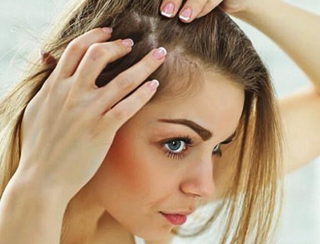 Що робити, якщо випадає волосся у жінок. Поради Уляни Супрун