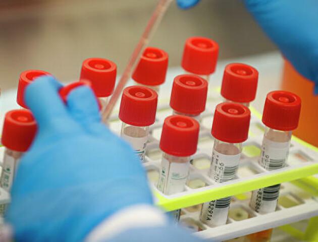 У МОЗ розповіли, скільки дітей захворіло, де найбільше нових випадків COVID-19
