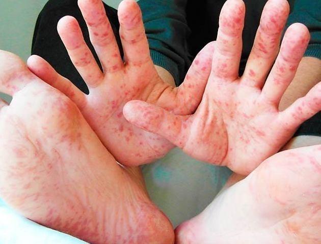 На Волині за тиждень на кір захворіла 81 людина