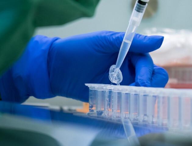 20-25% тестів можуть показувати неправильний результат у хворих на коронавірус, - МОЗ