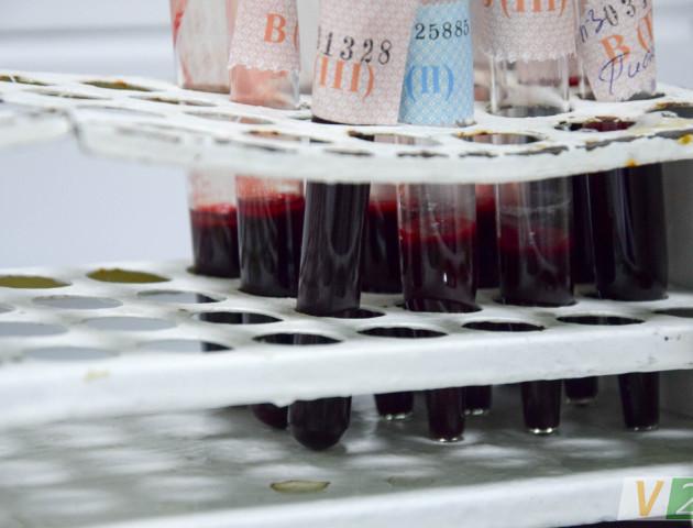 Чи стане станція переливання крові у Луцьку приватною?