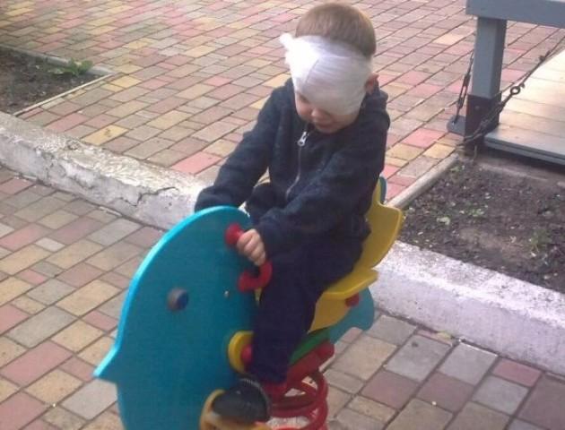 На Волині дитина, граючись, пошкодила око: просять допомоги