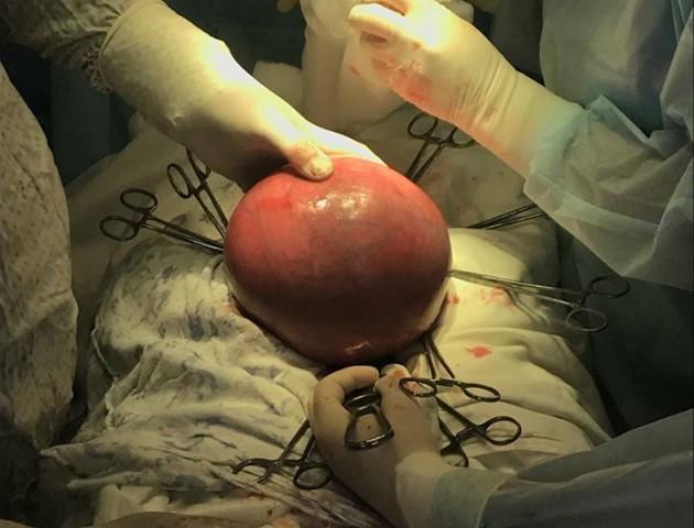 «Як доношена вагітність», - у волинянки видалили пухлину вагою 2,5 кілограма. ФОТО