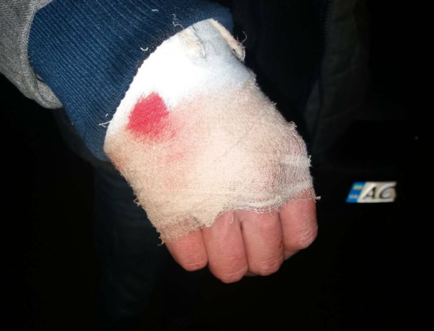 У Луцьку п'яниця напав на таксиста з ножем. ФОТО