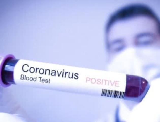 Відомо, які супутні захворювання мали померлі з COVID-19 в Україні