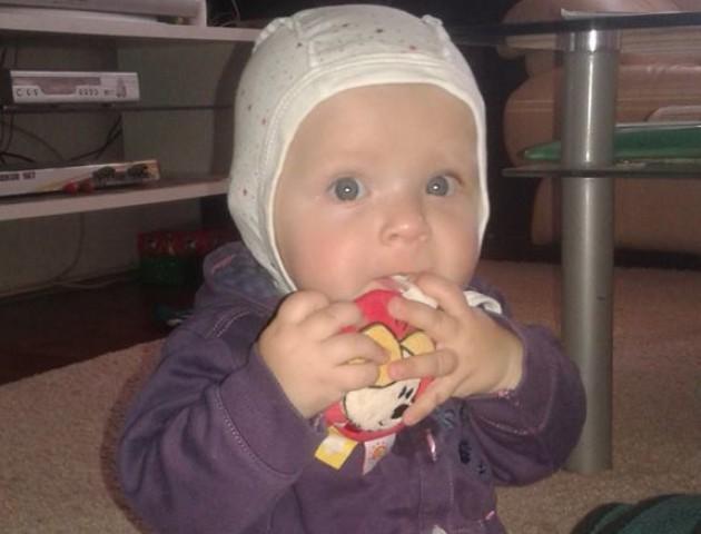 Маленькій волинянці, яка не чує ні мами, ні тата, терміново збирають гроші на операцію