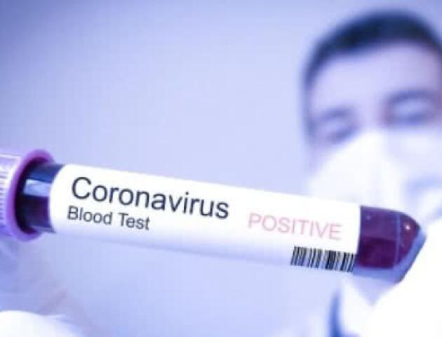 Україна тестуватиме громадян на коронавірус системами російського походження, – нардеп