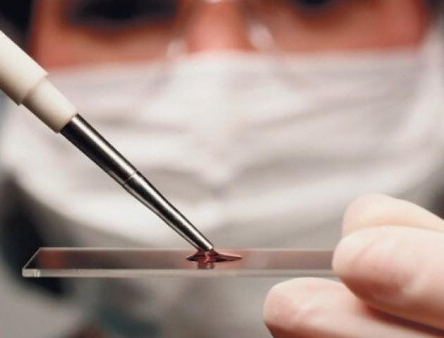 На Волині зможуть миттєво аналізувати кров пацієнтів
