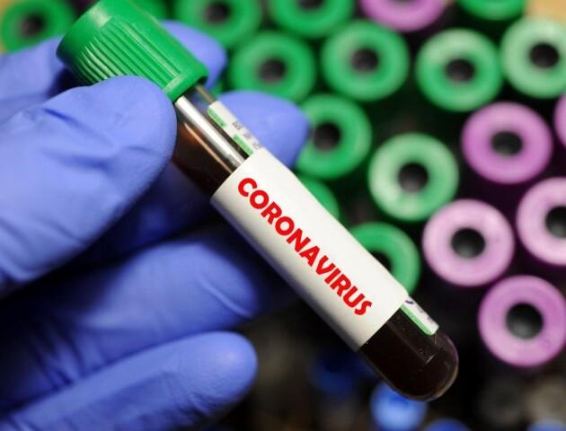 В Україні - 418 хворих на коронавірус. На Волині пацієнтів не побільшало