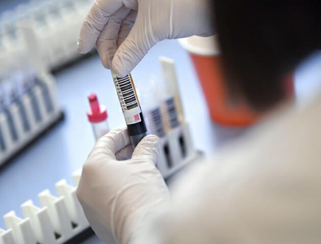 В Україні 483 нових випадків коронавірусу. На Волині - антирекорд