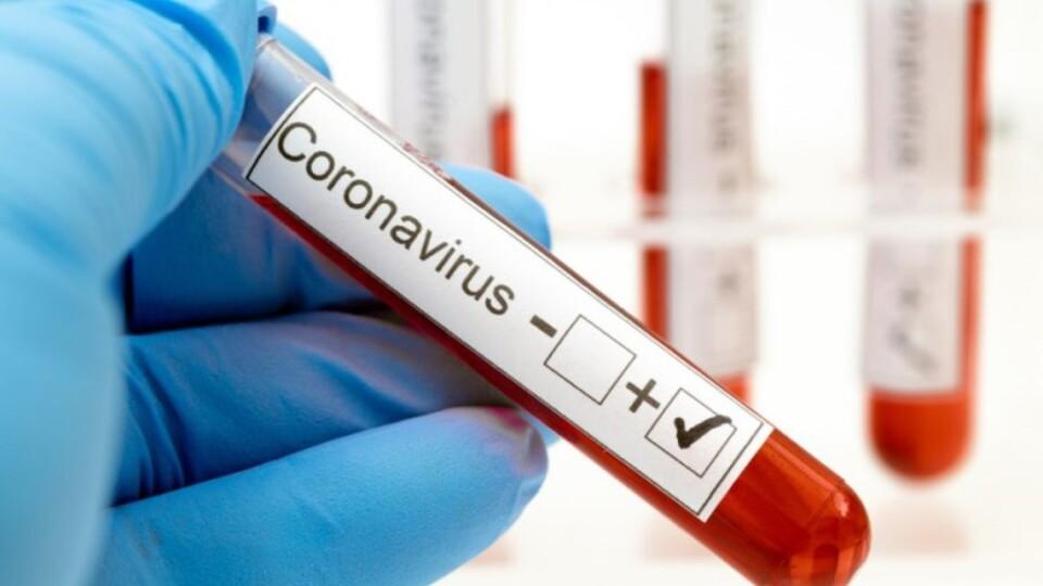Коронавірус на Волині: що змінилося за добу