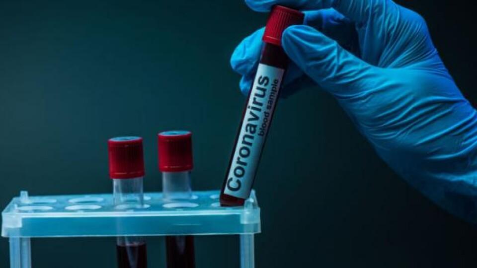 Коронавірус в Україні: 507 нових хворих та 20 смертей