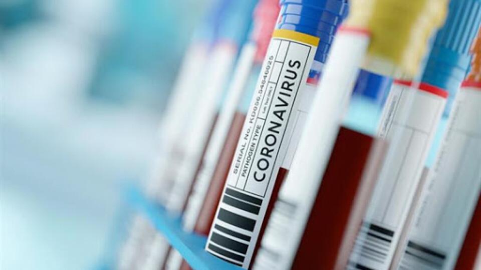 В Україні за добу виявили 1464 хворих на коронавірус