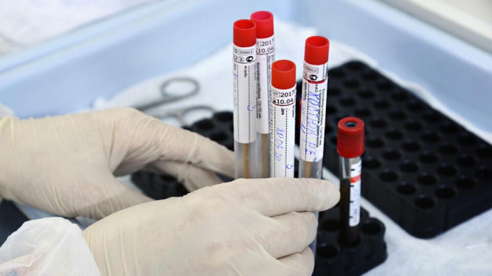 За минулу добу в Україні виявили 323 хворих на коронавірус. Одужало – 677