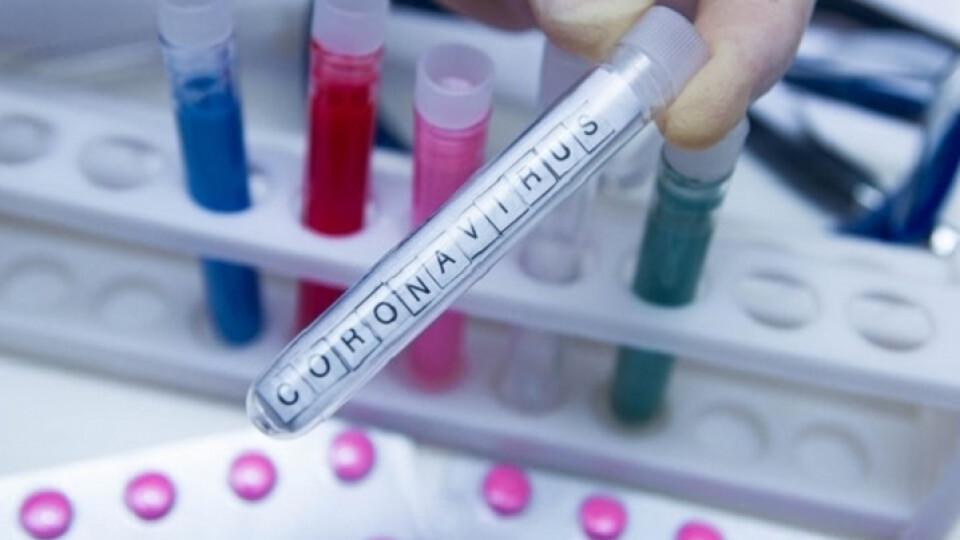 Сьогодні на Волинь прийде майже 8 тисяч тестів на коронавірус