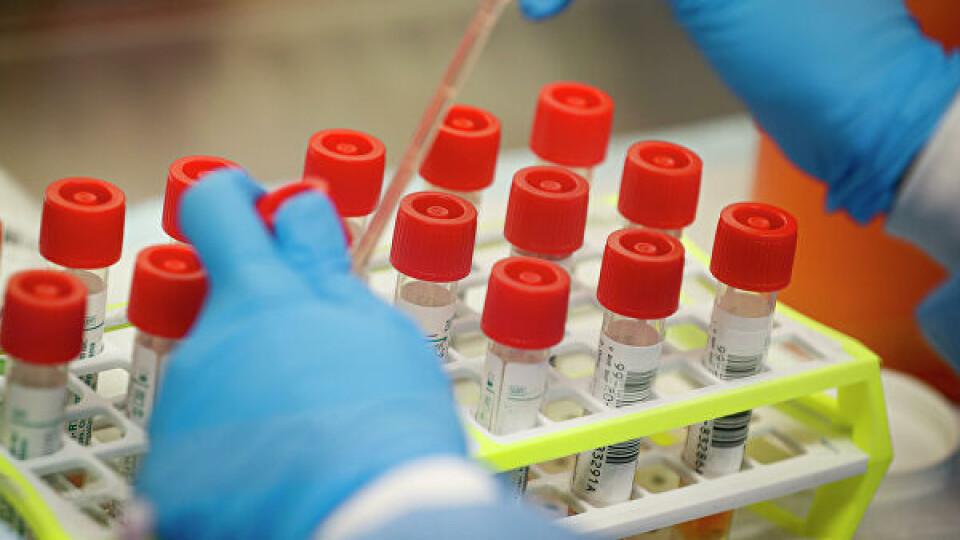 В Україні дозволили не робити ПЛР-тест після самоізоляції, якщо немає симптомів коронавірусу