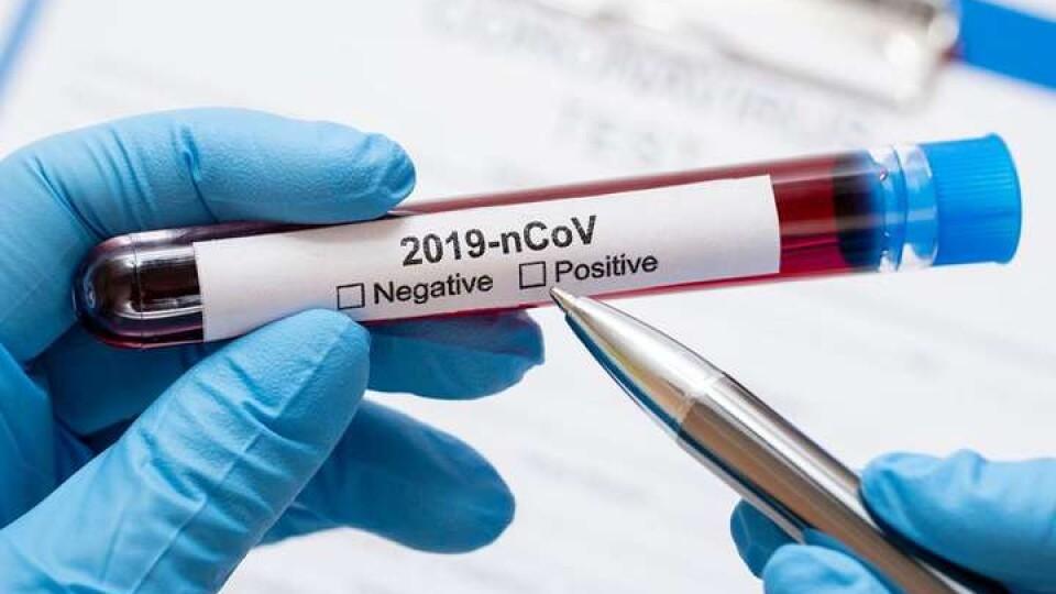 Перший заступник голови Рівненської ОДА захворів на коронавірус