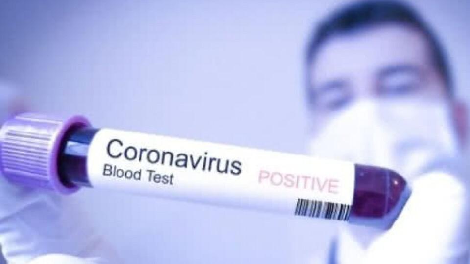 На Волині – 26 випадків зараження коронавірусом