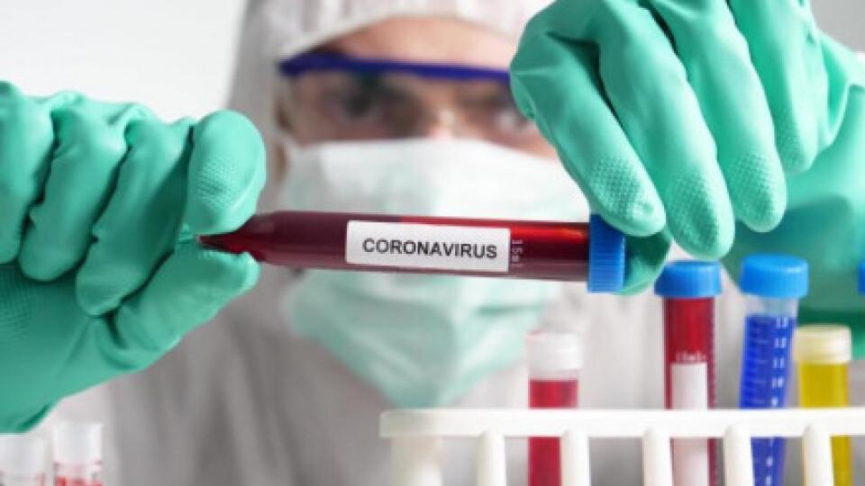За минулу добу в Україні виявили 535 хворих на коронавірус. Одужало – 1 743