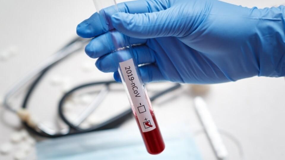 ПЛР-лабораторія при Волинській обллікарні запрацює до кінця тижня, – управління охорони здоров'я