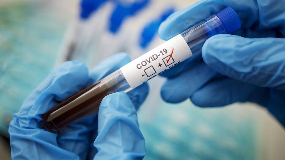В Україні за добу виявили понад дві тисячі хворих на коронавірус
