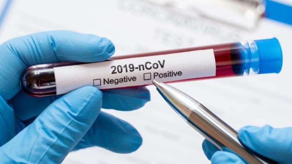 Індійський штам коронавірусу скоро буде і в Україні, – Степанов