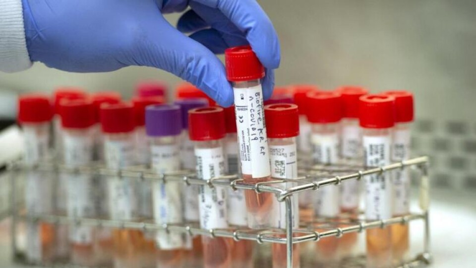 За минулу добу на Волині виявили 407 хворих на коронавірус