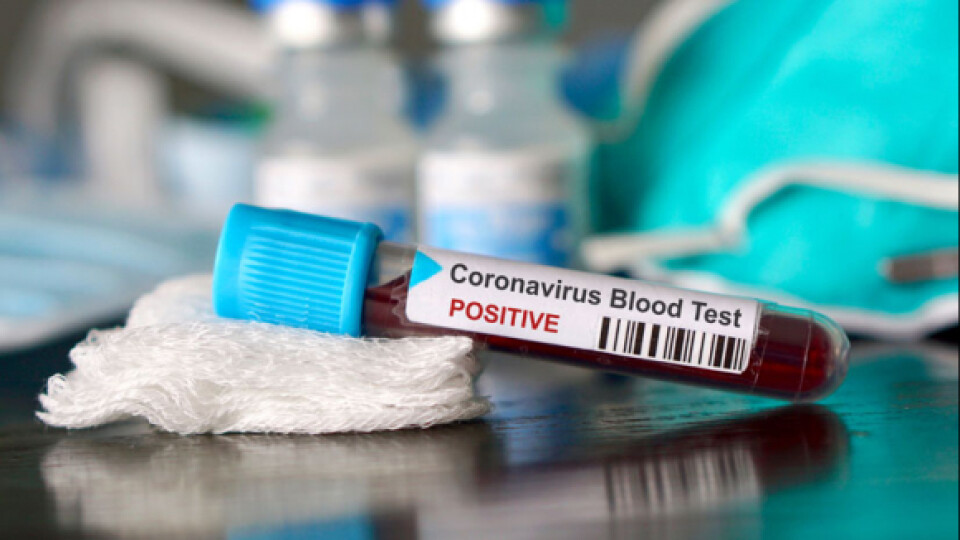 На Волині за добу виявили два випадки коронавірусу, – офіційно