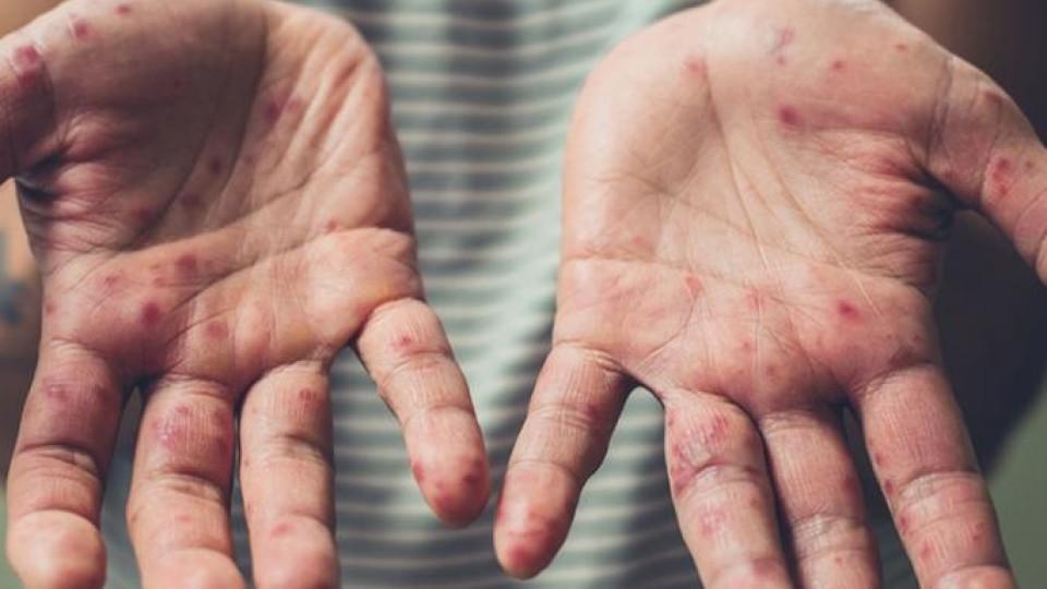 Волинь - на 7 місці в Україні за захворюваністю на кір