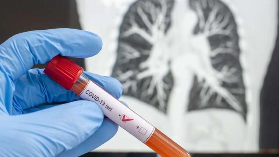 Коронавірус на Волині: ще 45 людей заразилося, двоє – померло