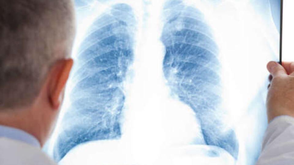 На Волині хворих з пневмонією стало більше на 75%