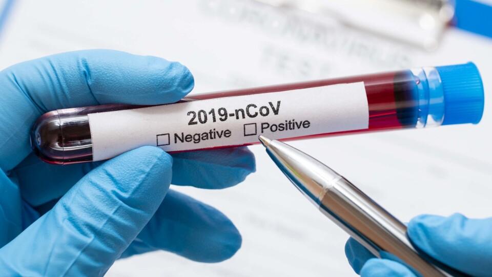 Коронавірус в Україні: понад 11 тисяч нових заражень і майже 5 тисяч госпіталізацій за добу