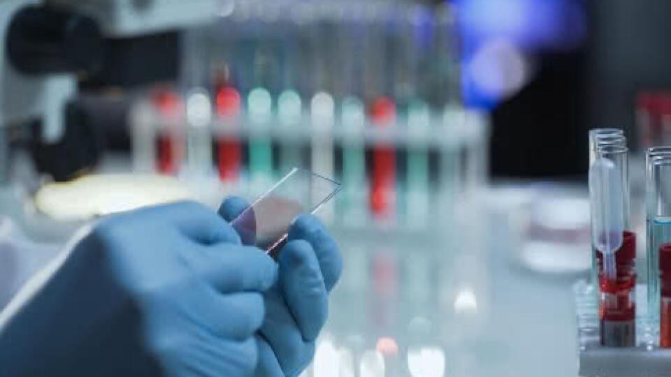 У МОЗ повідомили про 47 зареєстрованих випадків коронавірусу в Україні