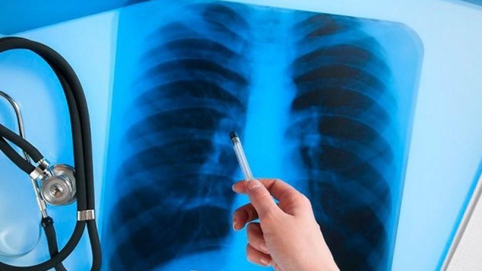 Де на Волині найбільше хворих на туберкульоз