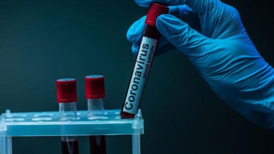 За минулу добу в Україні виявили 1906 хворих на коронавірус