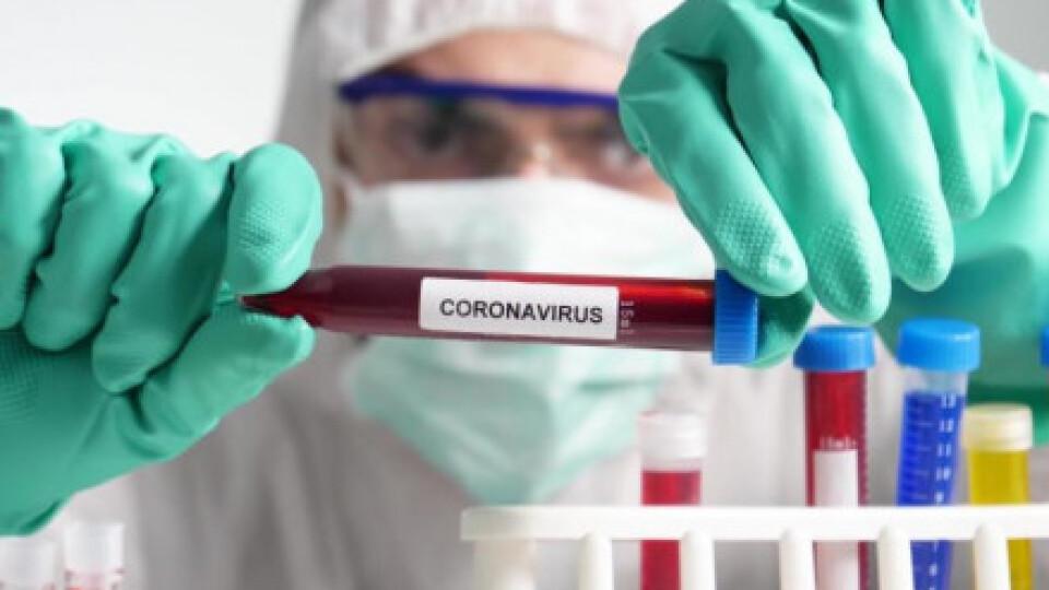 За минулу добу ще у 35 волинян виявили коронавірус
