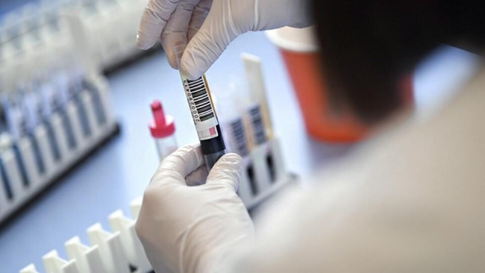 Коронавірус в Україні: нових хворих знову менше, ніж тих, хто одужав