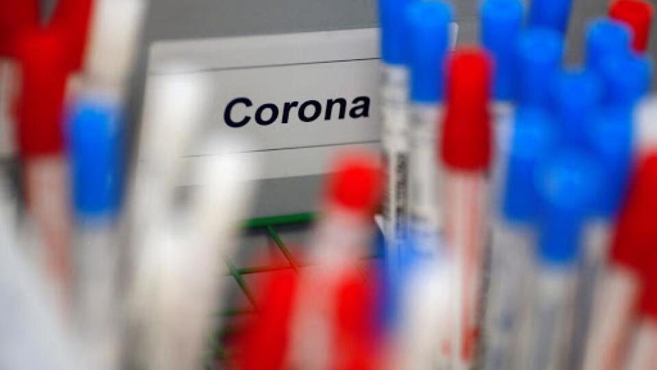 На Волині один з найвищих показників колективного імунітету до COVID-19, – дані лабораторії