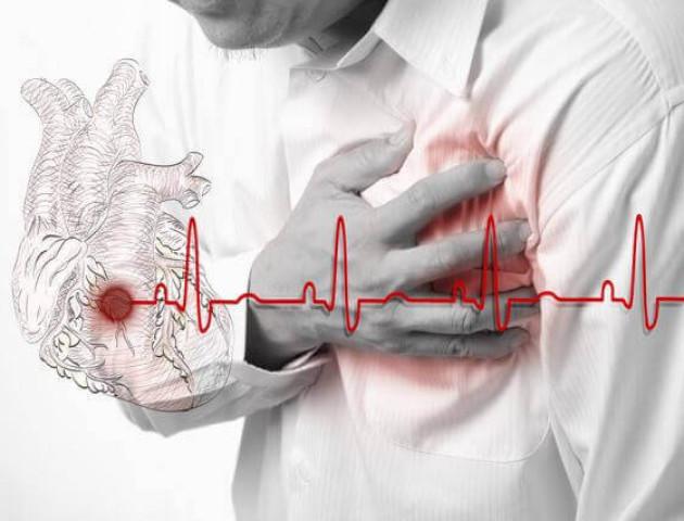 Після фізичних навантажень у волинянина стався інфаркт