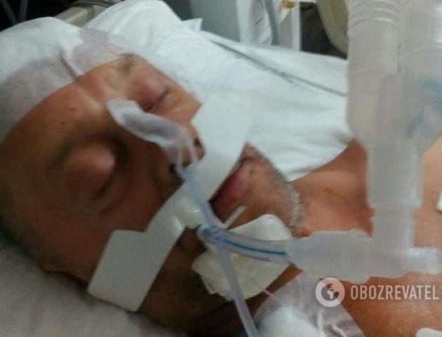 Повідомили, чому у Туреччині росіянин побив до коми українця